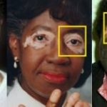Vitiligo Diagnosis and Treatment