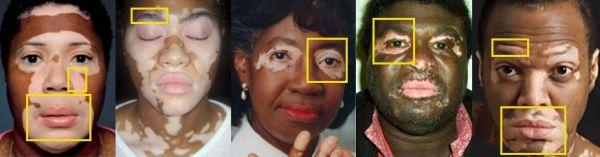 Vitiligo diagnosis and treatment