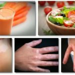 Vitiligo Home Remedies