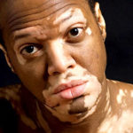 Lee Thomas: Turning White. Life of a Vitiligo Patient