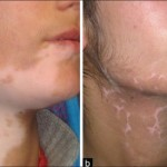 Skin care for Vitiligo patients