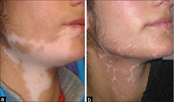 skin care vitiligo