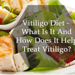 Vitiligo Diet: What to eat and avoid in Vitiligo