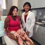Lisa Johnson Vitiligo to be cured by Narrowband UV light therapy