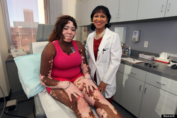 Rare Skin Condition Leaves Woman With Black And White Body