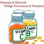 Best Vitamins for Vitiligo Treatment