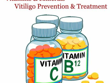 vitiligo vitamins supplements