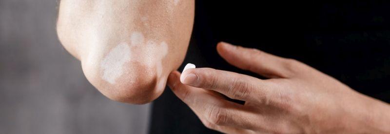 Ruxolitinib cream vitiligo