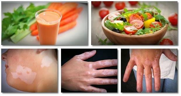 diet-for-vitiligo-natural-vitiligo-treatment