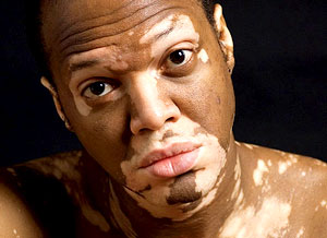 vitiligo patient