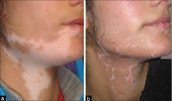 skin care vitiligo