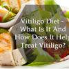 Vitiligo Diet: What to eat and avoid in Vitiligo