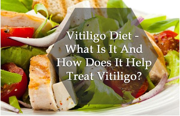 vitiligo diet